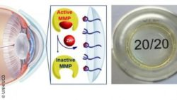Image: graphic showing the function of the hydrogel contact lens; Copyright: UNH/UCD