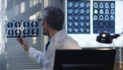 Image: Doctor analyzes images of brain; Copyright: panthermedia.net / EvgeniyShkolenko