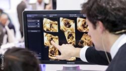 Image: Man points at an imaging scan; Copyright: Messe Düsseldorf